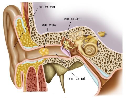 An Ear Impacted by Wax
